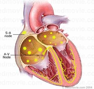 Atrial-Fibrillation1