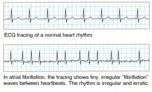 EKG-2-with-new-text-and-smaller-jpg2