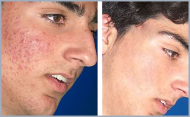 before_after_skin04